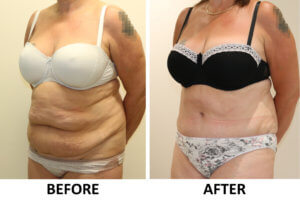 Brazilian tummy tuck before and after photos left oblique view
