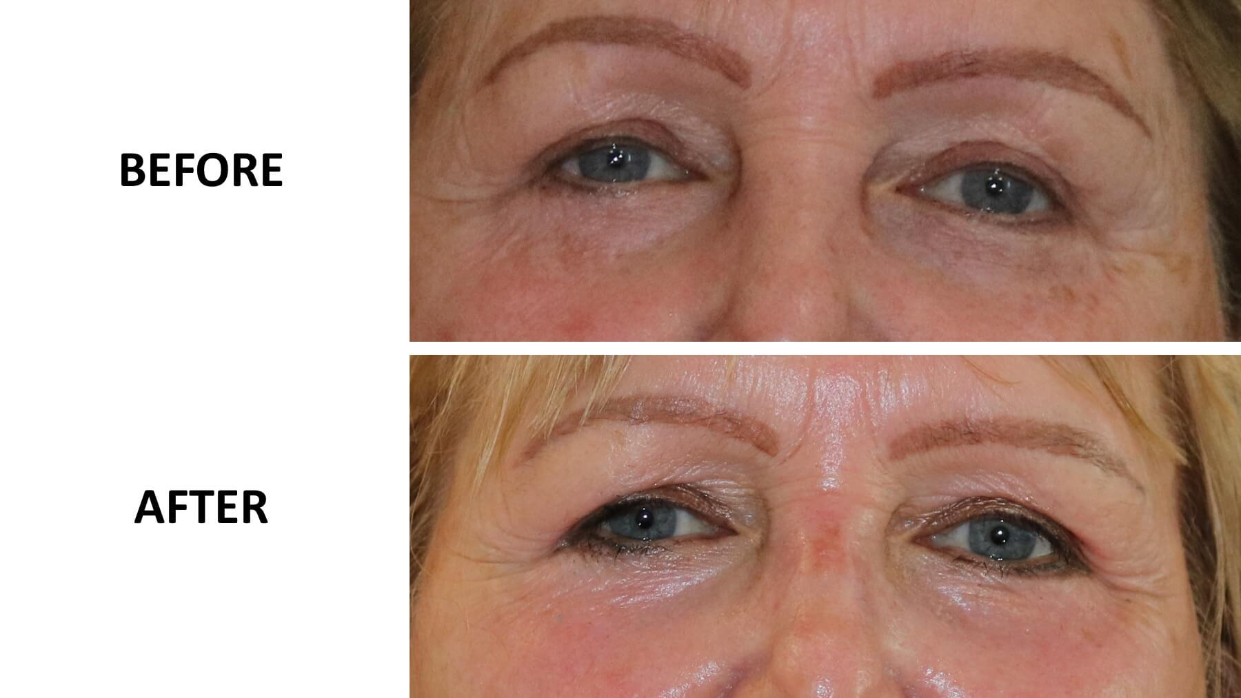 Lower eyelid phenol peel before and after