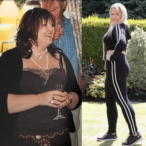 Living with Lipoedema - Karen Windsor's Story