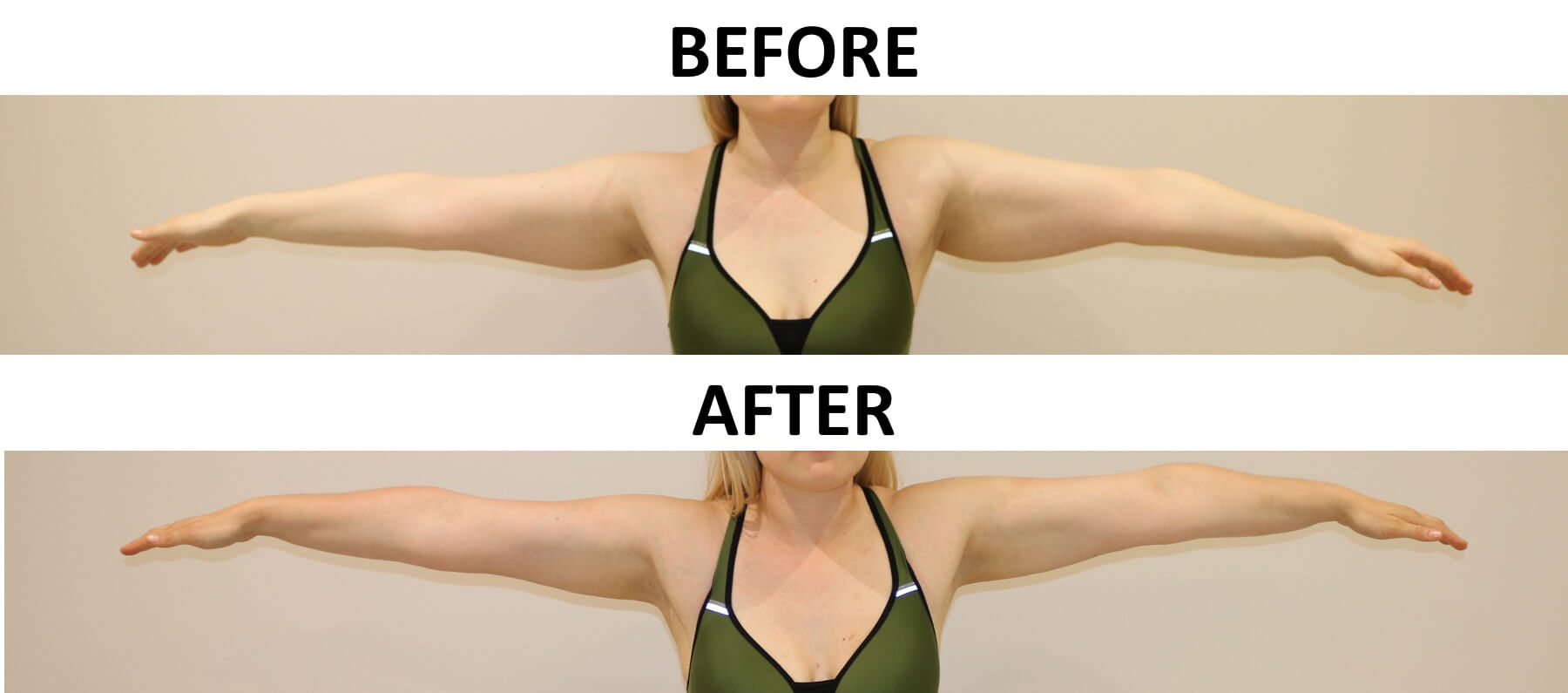 Arm liposuction before and after