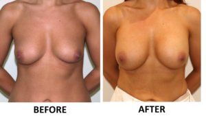 Breast enlargement AP view
