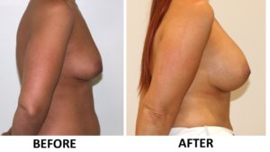 Breast enlargement right lateral view