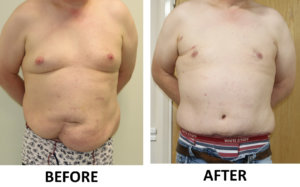 Tummy Tuck (Abdominoplasty) & Male Breast Reduction before and after AP view