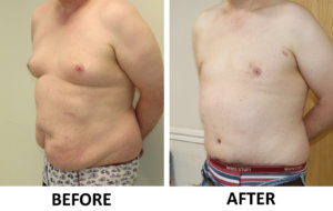 Tummy Tuck (Abdominoplasty) & Male Breast Reduction before and after left oblique view
