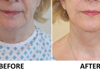 Facelift, necklift, phenol peel before and after AP view