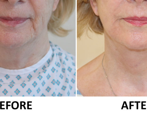 Facelift, Necklift & Full Face Phenol Peel