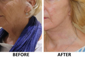 Facelift, necklift, phenol peel before and after left oblique view