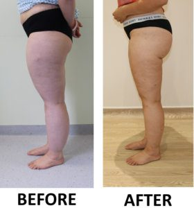 Lower limb lipoedema liposuction before and after left lateral view