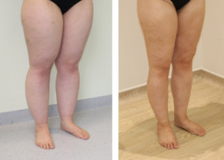Lower limb lipoedema liposuction before and after right oblique view