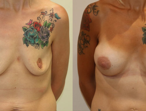 Before and After – A Natural Looking Breast Augmentation for Sagging, Deflated Breasts