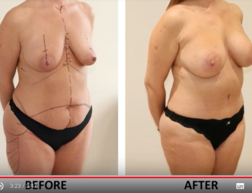 Mummy Makeover Breast Enlargement & Brazilian Tummy Tuck | Before & After Photos