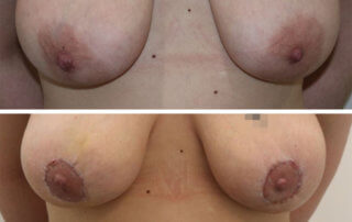 Areola-reduction