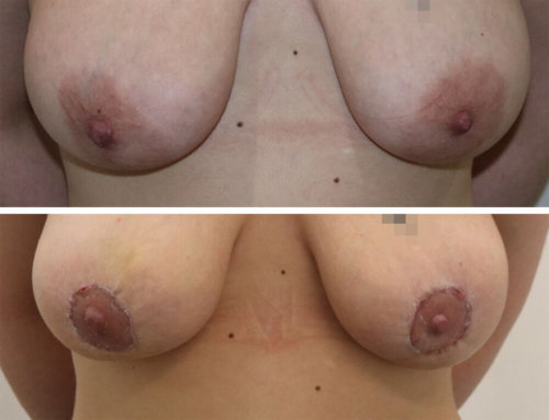 Before and After an Areola Reduction by Mr Karri at The Karri Clinic