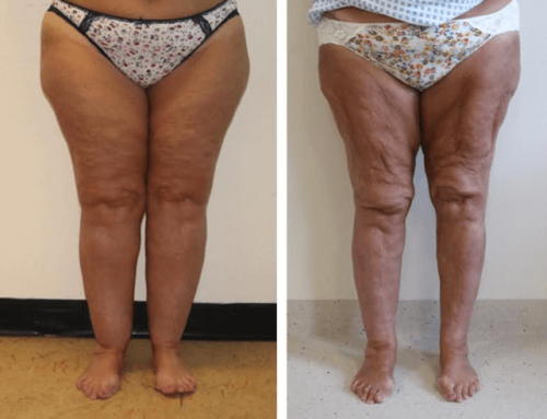 Lower limb lipoedema liposuction – 11.8 litres of fat removed
