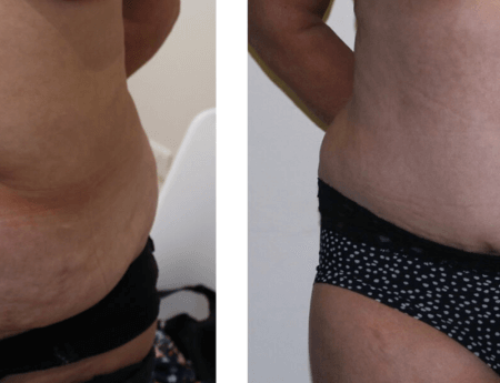 Brazilian Tummy Tuck – Before and After