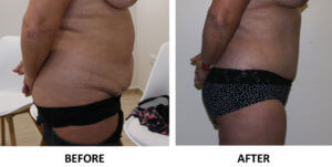 Tummy tuck before and after right lateral view