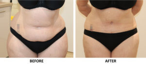 Brazilian tummy tuck AP view
