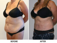 Brazilian tummy tuck left oblique view patient 1