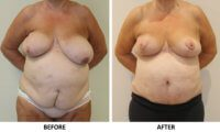 Symmetrising breast reduction and Brazilian tummy tuck AP view