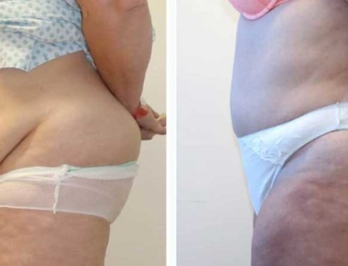 Everything you need to know about… a Tummy Tuck