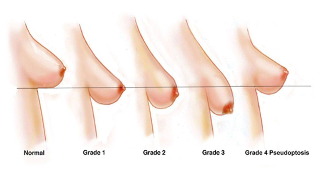 Breast-Grades
