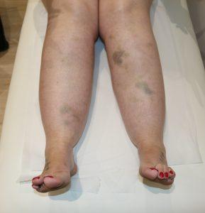 lipoedema bruising