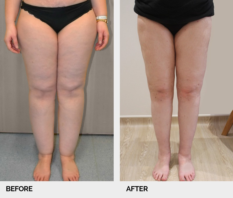 lipoedema view legs before and after ap
