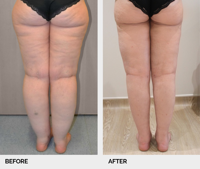lipoedema before and after legs