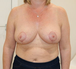 Breast reduction at The Karri Clinic AP view after photo