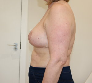 Breast reduction at The Karri Clinic right lateral after photo