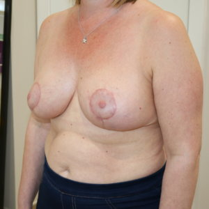 Breast reduction at The Karri Clinic left oblique after photo