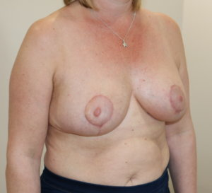 Breast reduction at The Karri Clinic right oblique after photo