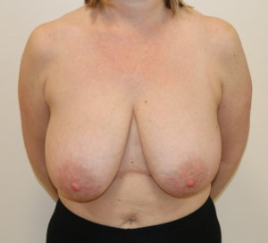 Breast reduction at The Karri Clinic AP view before photo