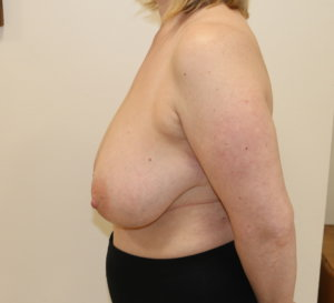 Breast reduction at The Karri Clinic left lateral before photo