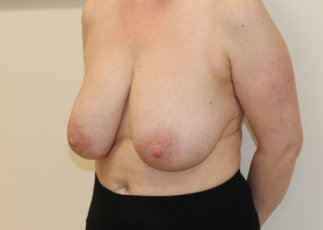 Breast reduction at The Karri Clinic left oblique before photo