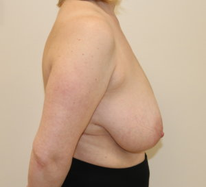 Breast reduction at The Karri Clinic right lateral before photo