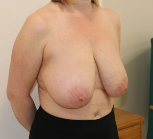 Breast reduction at The Karri Clinic right oblique before photo
