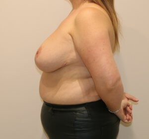 breast reduction after picture left lateral view