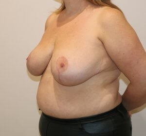 breast reduction after picture left oblique view