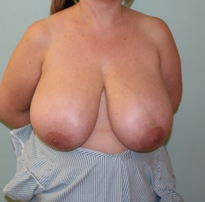 breast reduction before picture ap view