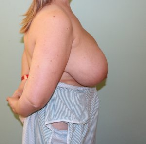 breast reduction before picture right lateral view