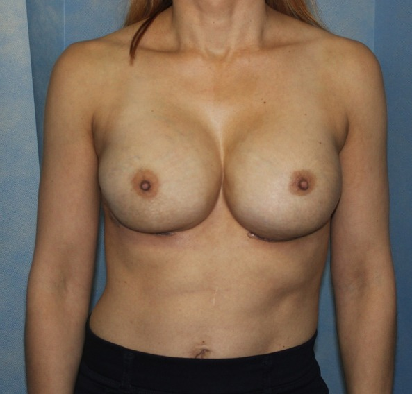 capsular contracture breast implant surgery after picture ap view