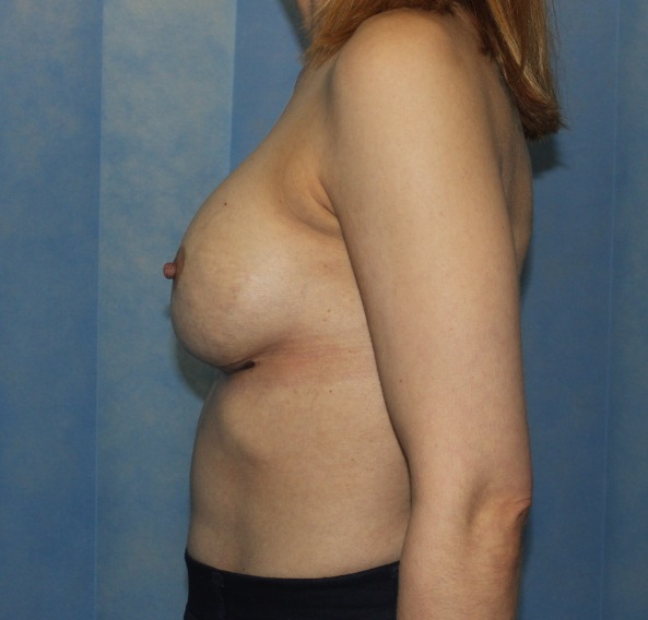 capsular contracture breast implant surgery after picture left lateral view