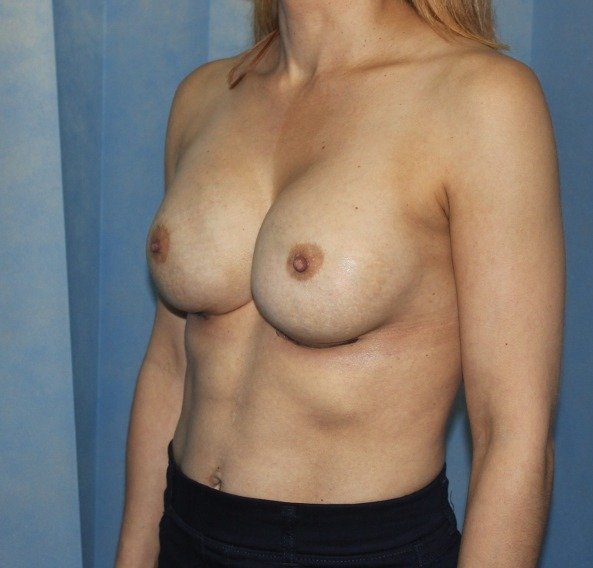 capsular contracture breast implant surgery after picture left oblique view