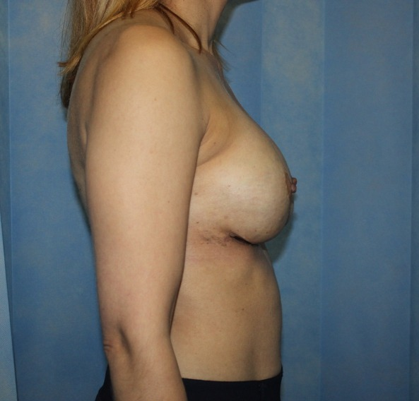capsular contracture breast implant surgery after picture right lateral view