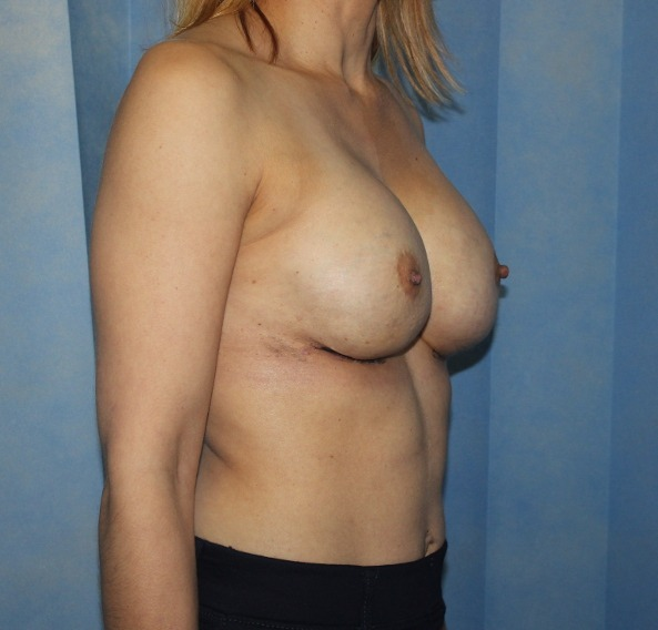 capsular contracture breast implant surgery after picture right oblique