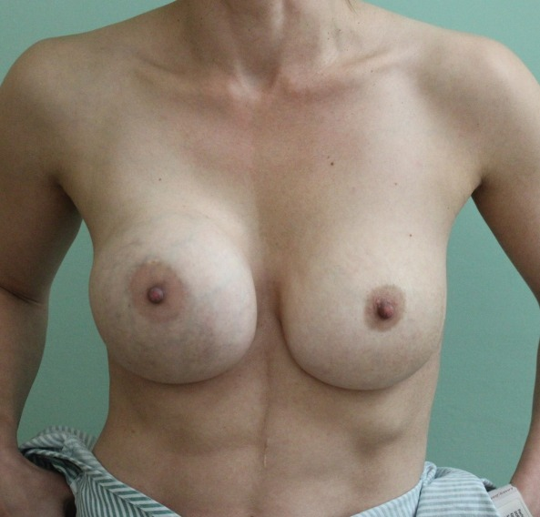 capsular contracture breast implant surgery before picture ap view