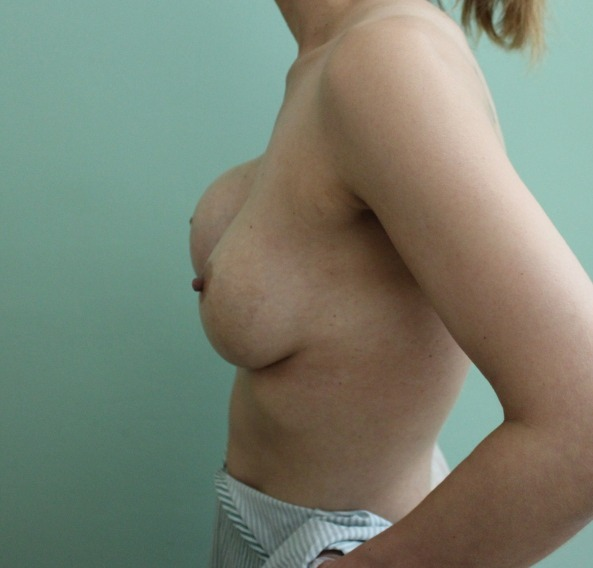 capsular contracture breast implant surgery before picture left lateral view