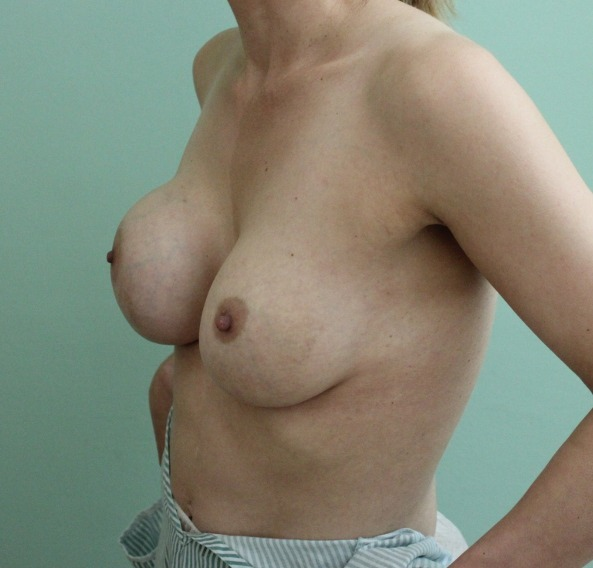 capsular contracture breast implant surgery before picture left oblique view