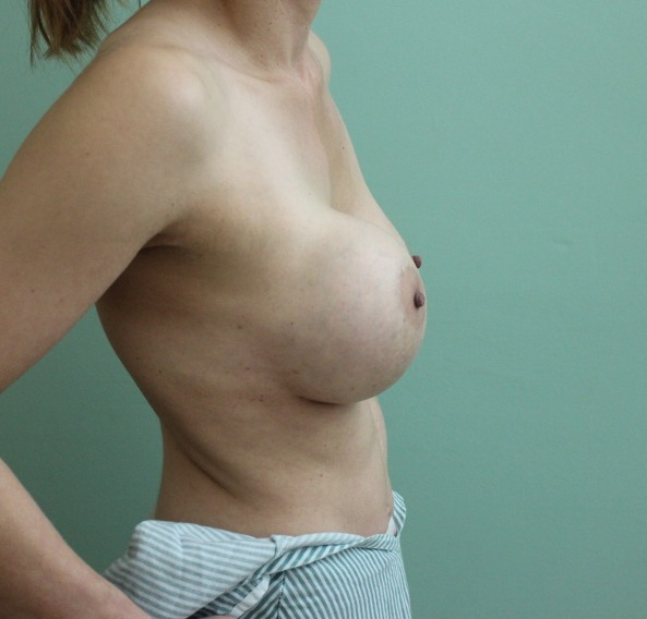 capsular contracture breast implant surgery before picture right lateral view